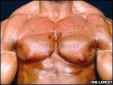 Steroids Side Effects Bbc News Health Bodybuilder Scarred From Steroids