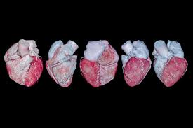 a collection of coronary artery 3 d rendering images the writer says he was lucky to learn his calcium score through a heart scan istock