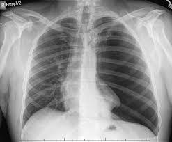 Chest Xray In Pneumothorax