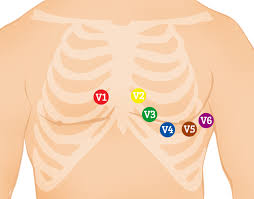 Ekg Lead Placement Chart 12 Lead Ecg Placement Guide With Illustrations
