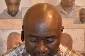 Vinci Hair Clinic Abuja Obnovu Vlasů V Nigérii Msp
