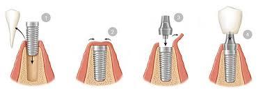 Resultado de imagen de protocolo colocacion de implantes