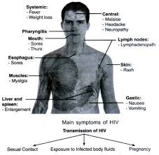 essay on hiv aids signs symptoms and prevention main symptoms of hiv