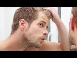 Male Pattern Baldness Cure Amazing Finally There Is Now A Cure For Male Pattern Baldness