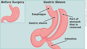 stomach before and after the gastric sleeve surgery