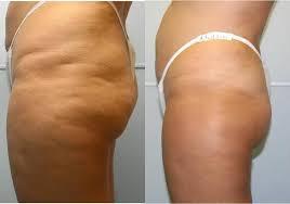 Cellulite behandlung kosten