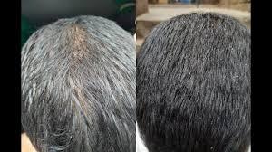 diffuse hair loss get more vitamin b6