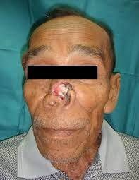 a squamous cell carcinoma of nose b