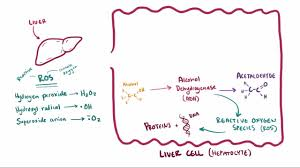 Pathophysiology Of Liver Cirrhosis In Flow Chart Alcoholic Liver Disease Hepatic And Biliary Disorders