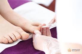 nail surgery epiphany dermatology