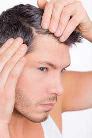 Hairstyles Female Hair Loss Telogen Effluvium Hair Loss You Can Get More Details By Clicking