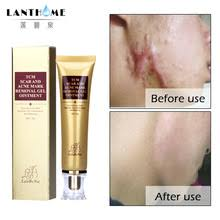 Buy acne spot treatment and get free shipping on AliExpress.com