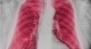 A Visual Guide To Copd