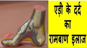 heel pain ka rambaan ilaj heel pain ankle pain treatment in hindi