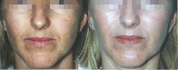 lactic ls bined ultraceuticals homecare before and after