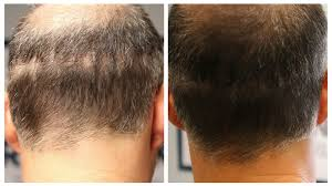 how can scalp micropigmentation and fue work together
