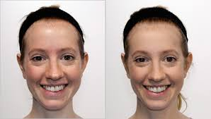 here for more tips on how to apply ultraceuticals cc s