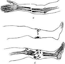 Первая помощь при ушибах переломах вывихах и растяжениях связок Закрытый перелом костей предплечья а и открытый перелом костей голени б