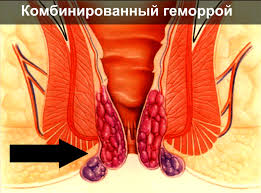 мазь от геморроя для рассасывания твёрдых узлов