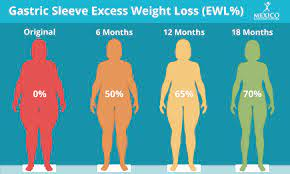 i lose with gastric sleeve surgery