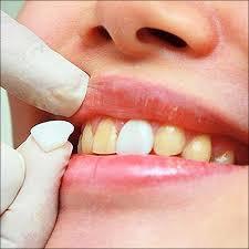 diy veneer teeth aliexpress 50pcs pack ultra thin whitening dental 3d teeth