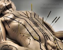 """Résultat de recherche d'images pour """"acupuncture"""""""