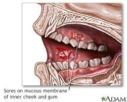mouth sores information mount sinai