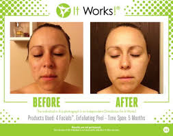 it works exfoliating peel before and after peeling it works body wraps deutschland