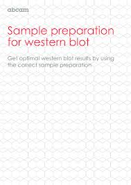 sle preparation for western blot get optimal western blot results by using