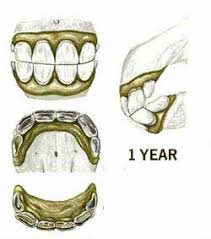 Horses Age From Teeth Growth Knowing The Signs Of Age