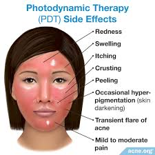 Levulan Blue Light Treatment Does Photodynamic Therapy Work For Acne Acne Org