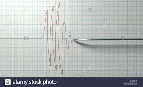 Polygraph Chart Definition Polygraph Test Stock Photos Polygraph Test Stock Images
