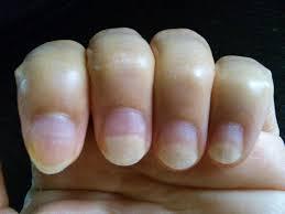 爪 マニキュア 落とす と 白い