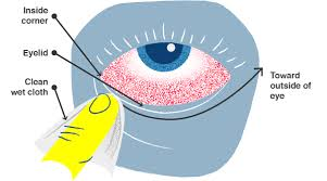 Doctors Note For Pink Eye School Nurse Guide To Kids Health Safety Rntobsn Org