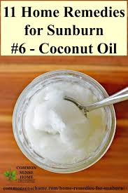 coconut oil for sunburn relief