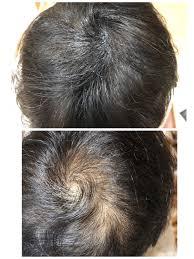 楽天市場増毛スプレー ヘアーモーメントp 90g 薄毛隠し増毛スプレー