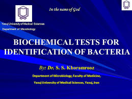 Biochemical Test Chart Identification Biochemical Tests For Identification Of Bacteria Ppt Video