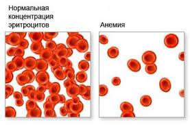 Гиперхромная анемия симптомы причины лечение малокровие Особенностью гиперхромной анемии