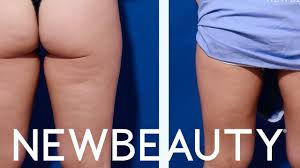 Contour Light Body Sculpting Before And After Velashape Before And After Newbeauty