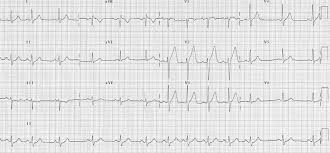 Types Of Arrhythmia Chart Sinus Arrhythmia Litfl Medical Blog Ecg Library Basics