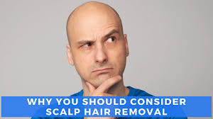 scalp hair removal laser treatment