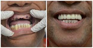 dental implants nyc best dental
