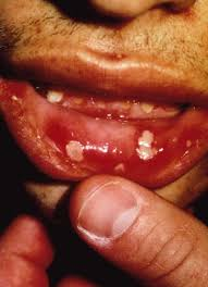 how to get rid of canker sores causes