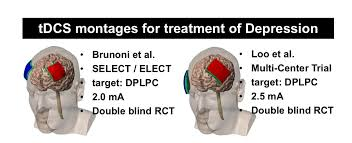 Electrode Placement Diy Tdcs