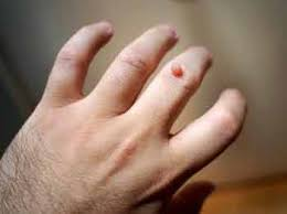 Homeopathic Medicines for warts - Homeopathy Treatment