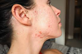accutane before after systemic