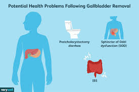 Gallbladder Removal What To Eat For Better Management