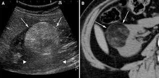 renal angiomyolipoma a radiological