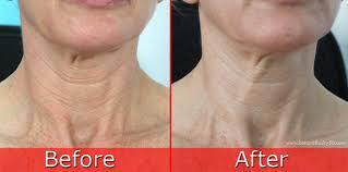 Dr perricone neck cream reviews