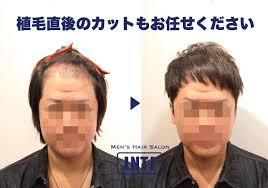 植毛後の髪型のご相談が出来る美容室がある事をご存知ですか 髪が他人